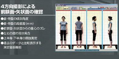 4方向の姿勢撮影により、姿勢の歪みがミリ単位でわかる